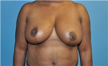Breast Reduction After Photo by Joshua Cooper, MD; Seattle, WA - Case 34642