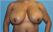 Breast Reduction Before Photo by Joshua Cooper, MD; Seattle, WA - Case 34642