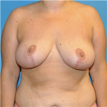 Breast Reduction After Photo by Joshua Cooper, MD; Seattle, WA - Case 34643