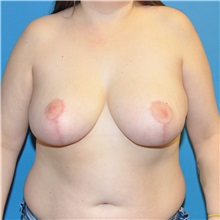 Breast Reduction After Photo by Joshua Cooper, MD; Seattle, WA - Case 34645