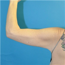 Arm Lift After Photo by Joshua Cooper, MD; Seattle, WA - Case 38714