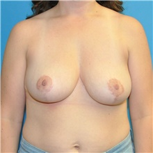 Breast Reduction After Photo by Joshua Cooper, MD; Seattle, WA - Case 40615