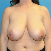 Breast Reduction Before Photo by Joshua Cooper, MD; Seattle, WA - Case 40615