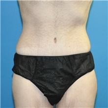 Body Lift After Photo by Joshua Cooper, MD; Seattle, WA - Case 41789