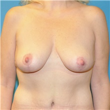 Breast Lift After Photo by Joshua Cooper, MD; Seattle, WA - Case 41858