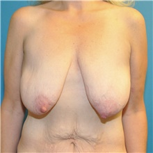 Breast Lift Before Photo by Joshua Cooper, MD; Seattle, WA - Case 41858