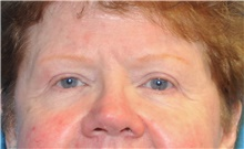 Eyelid Surgery After Photo by Joshua Cooper, MD; Seattle, WA - Case 41869
