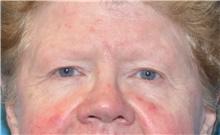 Eyelid Surgery Before Photo by Joshua Cooper, MD; Seattle, WA - Case 41869