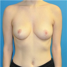 Breast Reduction After Photo by Joshua Cooper, MD; Seattle, WA - Case 42027