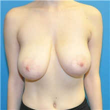 Breast Reduction Before Photo by Joshua Cooper, MD; Seattle, WA - Case 42027