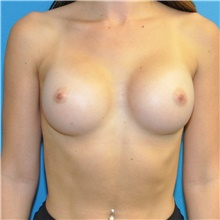 Breast Augmentation After Photo by Joshua Cooper, MD; Seattle, WA - Case 43205