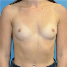 Breast Augmentation Before Photo by Joshua Cooper, MD; Seattle, WA - Case 43205