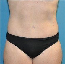 Tummy Tuck After Photo by Joshua Cooper, MD; Seattle, WA - Case 43214