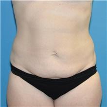 Tummy Tuck Before Photo by Joshua Cooper, MD; Seattle, WA - Case 43214