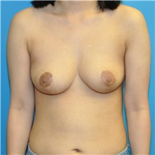 Breast Reduction After Photo by Joshua Cooper, MD; Seattle, WA - Case 44348