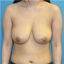 Breast Reduction Before Photo by Joshua Cooper, MD; Seattle, WA - Case 44348