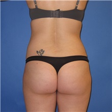 Buttock Lift with Augmentation After Photo by Austin Hayes, MD; Hillsboro, OR - Case 31142