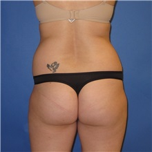 Buttock Lift with Augmentation Before Photo by Austin Hayes, MD; Hillsboro, OR - Case 31142