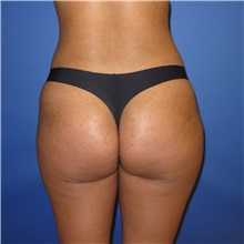Buttock Lift with Augmentation After Photo by Austin Hayes, MD; Portland, OR - Case 31143