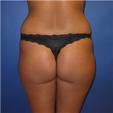Buttock Lift with Augmentation Before Photo by Austin Hayes, MD; Portland, OR - Case 31143