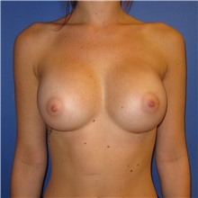 Breast Augmentation After Photo by Austin Hayes, MD; Hillsboro, OR - Case 31144