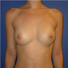 Breast Augmentation Before Photo by Austin Hayes, MD; Hillsboro, OR - Case 31144