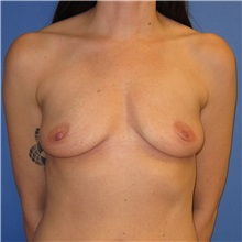 Breast Implant Removal After Photo by Austin Hayes, MD; Hillsboro, OR - Case 31145
