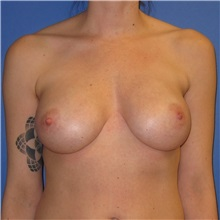Breast Implant Removal Before Photo by Austin Hayes, MD; Hillsboro, OR - Case 31145