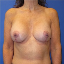 Breast Lift After Photo by Austin Hayes, MD; Portland, OR - Case 31146