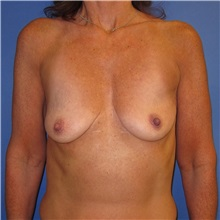 Breast Lift Before Photo by Austin Hayes, MD; Portland, OR - Case 31146