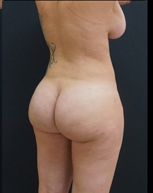 Buttock Lift with Augmentation After Photo by Johnny Franco, MD; Austin, TX - Case 39409