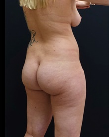 Buttock Lift with Augmentation Before Photo by Johnny Franco, MD; Austin, TX - Case 39409
