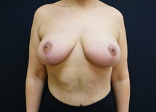 Breast Lift After Photo by Johnny Franco, MD; Austin, TX - Case 39724