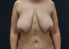 Breast Lift Before Photo by Johnny Franco, MD; Austin, TX - Case 39724