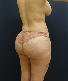 Buttock Lift with Augmentation After Photo by Johnny Franco, MD; Austin, TX - Case 39733