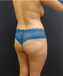Buttock Lift with Augmentation Before Photo by Johnny Franco, MD; Austin, TX - Case 39733