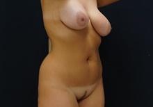 Liposuction Before Photo by Johnny Franco, MD; Austin, TX - Case 39737
