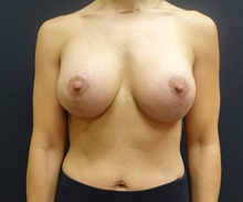 Breast Lift After Photo by Johnny Franco, MD; Austin, TX - Case 39746