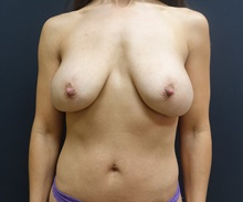 Breast Lift Before Photo by Johnny Franco, MD; Austin, TX - Case 39746