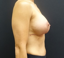 Breast Lift After Photo by Johnny Franco, MD; Austin, TX - Case 39748