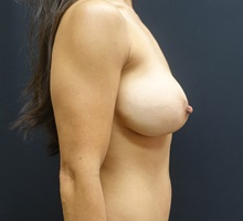 Breast Lift Before Photo by Johnny Franco, MD; Austin, TX - Case 39748