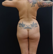Buttock Lift with Augmentation Before Photo by Johnny Franco, MD; Austin, TX - Case 39750