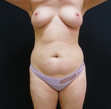 Liposuction Before Photo by Johnny Franco, MD; Austin, TX - Case 39770