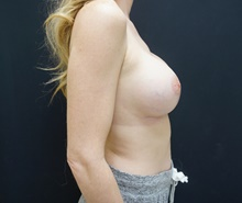 Breast Lift After Photo by Johnny Franco, MD; Austin, TX - Case 39784