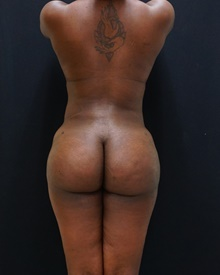 Buttock Lift with Augmentation After Photo by Johnny Franco, MD; Austin, TX - Case 39785