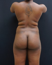 Buttock Lift with Augmentation Before Photo by Johnny Franco, MD; Austin, TX - Case 39785