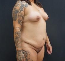 Tummy Tuck Before Photo by Johnny Franco, MD; Austin, TX - Case 39827