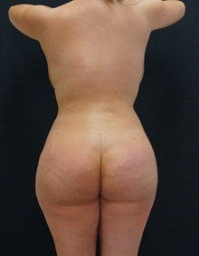 Buttock Lift with Augmentation After Photo by Johnny Franco, MD; Austin, TX - Case 39838