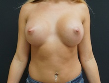 Breast Lift After Photo by Johnny Franco, MD; Austin, TX - Case 39852