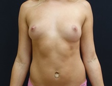 Breast Lift Before Photo by Johnny Franco, MD; Austin, TX - Case 39852